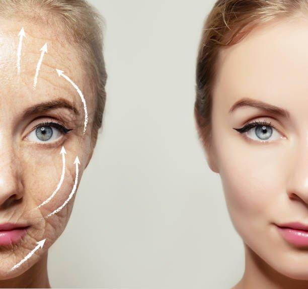 Imangen redensificación y retención facial