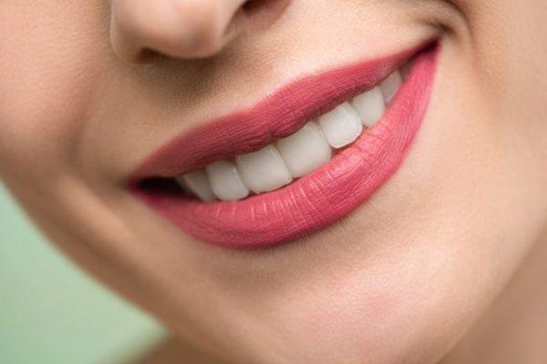 Imagen blanqueamiento dental