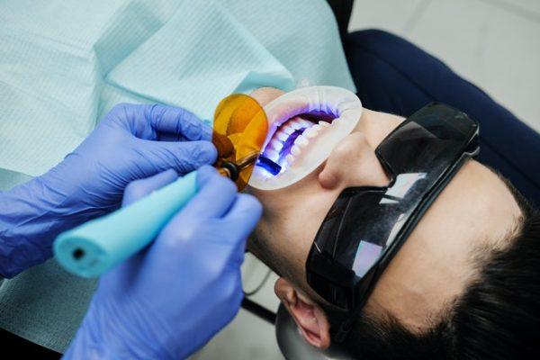 blanqueamineto_dental_2
